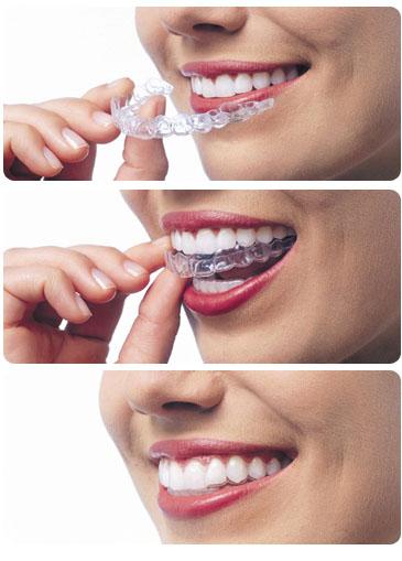 traitement orthodontique à l aide d'un appareillage invisalign